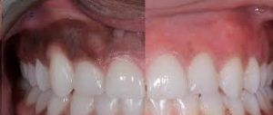 Gum whitening Treatment in Islamabad