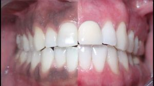 Gum whitening Treatment in Rawalpindi