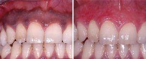 Gum whitening Treatment in Rawalpindi, lahore