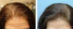 Hair Loss Treatment in Islamabad, Rawalpindi