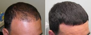 Hair Loss Treatment in Islamabad, Rawalpindi, Lahore