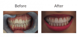 Invisalign Treatment in Islamabad, Lahore