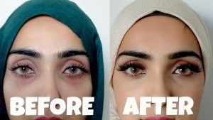 Laser Dark Circles Treatment in Islamabad, Rawalpindi & Pakistan
