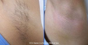 Laser Hair Removal in Islamabad, Rawalpindi