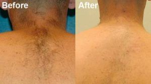 Laser Hair Removal in Islamabad, Rawalpindi, Pakistan
