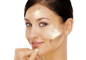 Laser Pigmentation Treatment in Islamabad, Rawalpindi & Pakistan