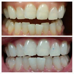 Laser Teeth Whitening in Islamabad