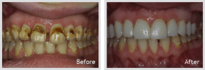 Periodontics and Gum Disease Treatment in Islamabad