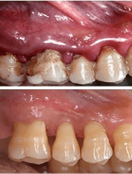 Periodontics and Gum Disease Treatment in Islamabad, Lahore, Rawalpindi & Pakistan