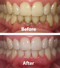 Periodontics and Gum Disease Treatment in Islamabad, Rawalpindi