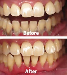 Periodontics and Gum Disease Treatment in Rawalpindi & Islamabad
