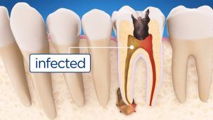 Procedure of Root Canal Treatment Islamabad, Pakistan
