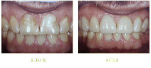 Root Canal Treatment in Islamabad, Lahore