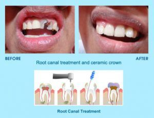 Root Canal Treatment in Islamabad, lahore, rawalpindi