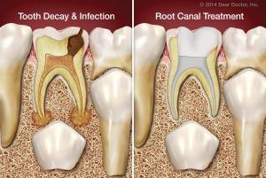 Root Canal Treatment in Islamabad, lahore, rawalpindi & pakistan