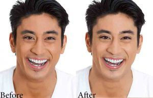 Skin Whitening Treatment in Islamabad