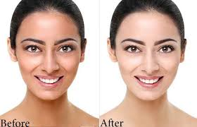 Skin Whitening Treatment in Islamabad, Rawalpindi & Pakistan