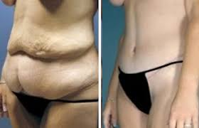 Tummy Tuck Treatment in Islamabad