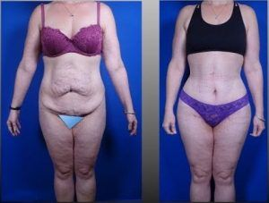 Tummy Tuck in Islamabad & Rawalpindi