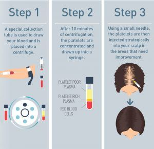 PRP Hair Treatment in Islamabad Infographic