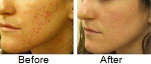Permanent Acne Scars Treatment Islamabad Pakistan