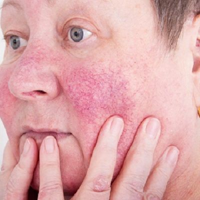 Rosacea treatment in Islamabad, Rawalpindi & Pakistan