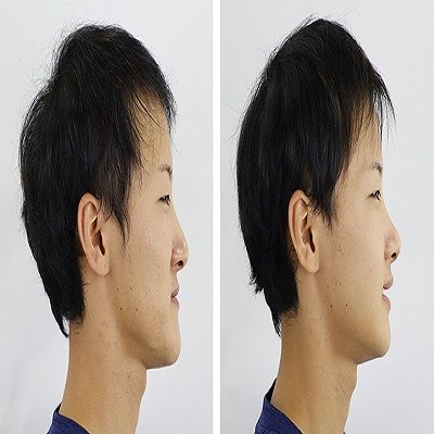 Jaw Surgery in Islamabad