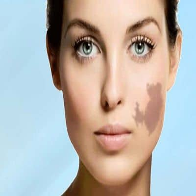 Laser Birthmark removal in Islamabad, Rawalpindi & Pakistan