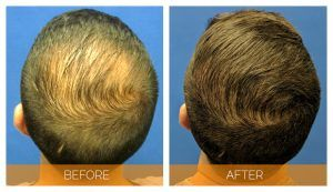 FUE Hair Transplant in Islamabad