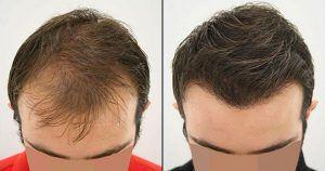 FUE Hair Transplant in Rawalpindi