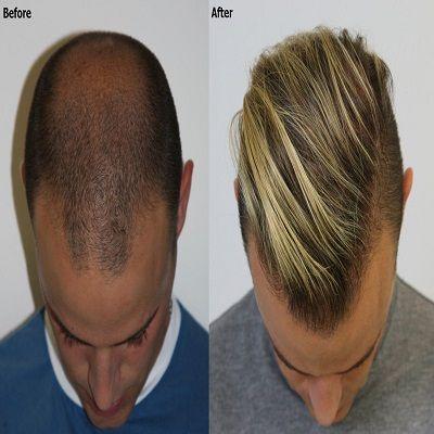 crown hair transplant in Islamabad