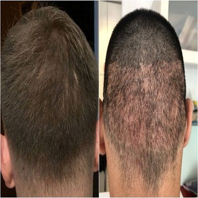 scarless Hair Transplant in Islamabad