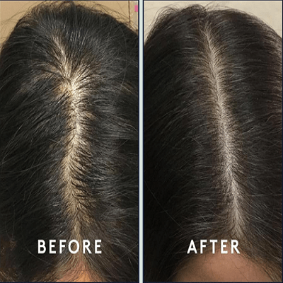 Hair Fillers for Baldness in Islamabad, Rawalpindi & Pakistan