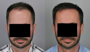 hair transplant Islamabad Before and After