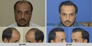 hair transplant in Islamabad Before and After