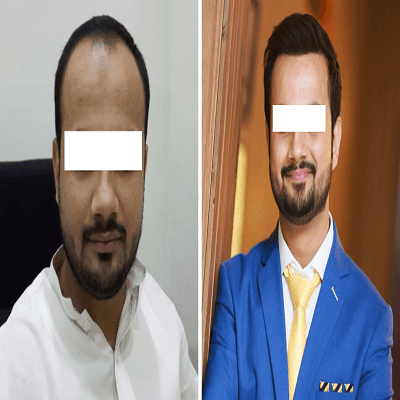 Male Hair transplant in Islamabad, Rawalpindi & Pakistan