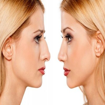 nose tip plasty in Islamabad, Rawalpindi & Pakistan