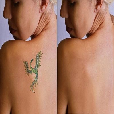 Picosure tattoo removal in Islamabad, Rawalpindi & Pakistan