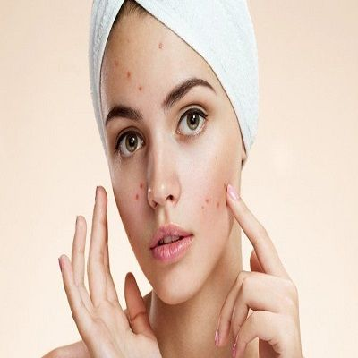 pimple treatment in Islamabad Pakistan