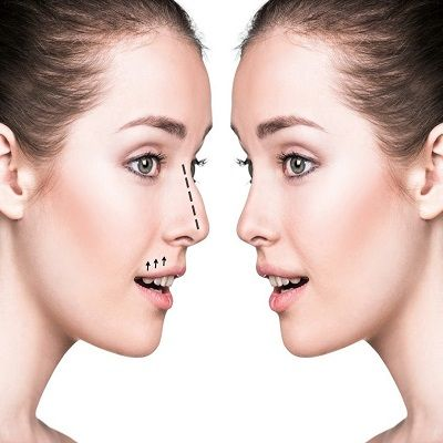 Septoplasty Surgery in Islamabad, Rawalpindi & Pakistan