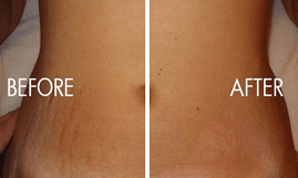 stretch mark removal in islamabad