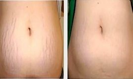 stretch mark removal treatment in islamabad