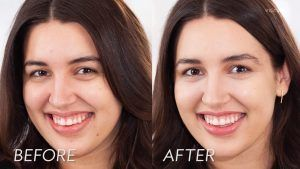 results of HydraFacial treatment in Islamabad