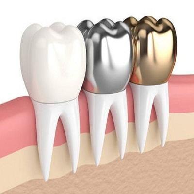 dental crowns in Islamabad Rawalpindi Pakistan