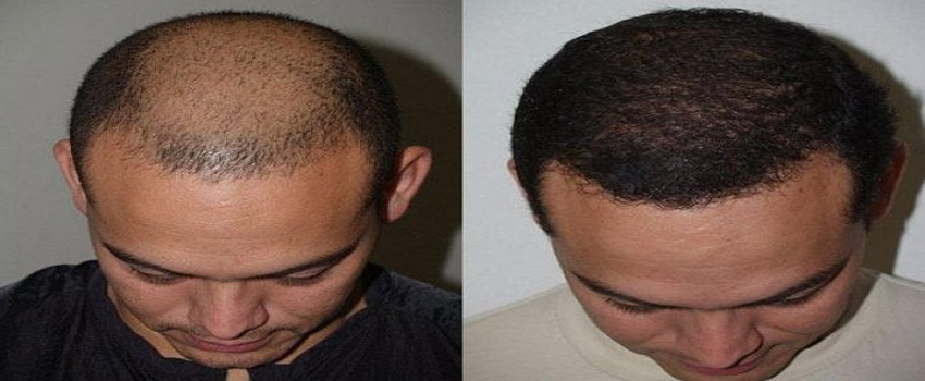 Which is the best Hair Transplant in Pakistan