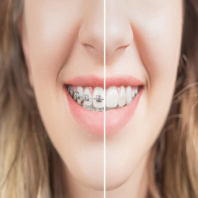 braces services in Islamabad Pakistan