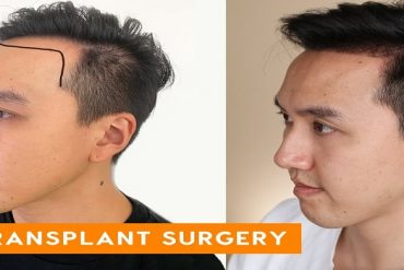 How To Get Rid of Hair Transplant Scars in Islamabad