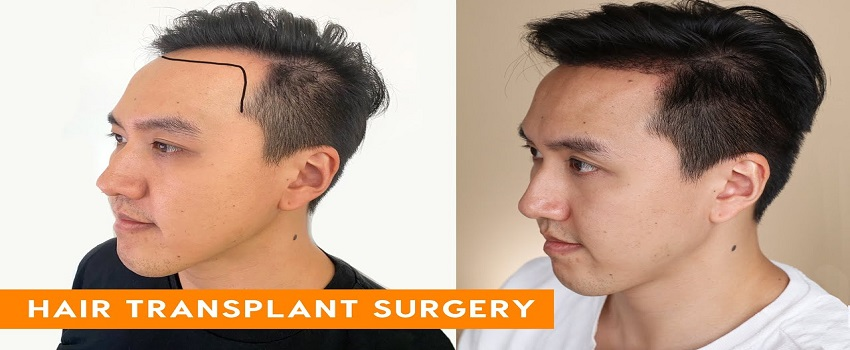 hair transplant side effects in Islamabad