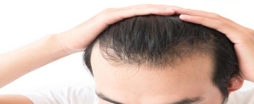 Hybrid Hair Transplant in Islamabad Pakistan