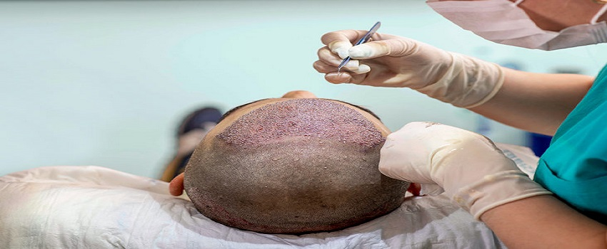 Beware of Black Market Hair Transplant And Illicit Clinics